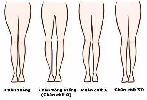 Thế nào là chân cong?