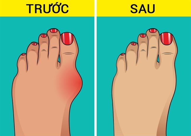 Ngón chân bị vẹo và ảnh hưởng nghiêm trọng